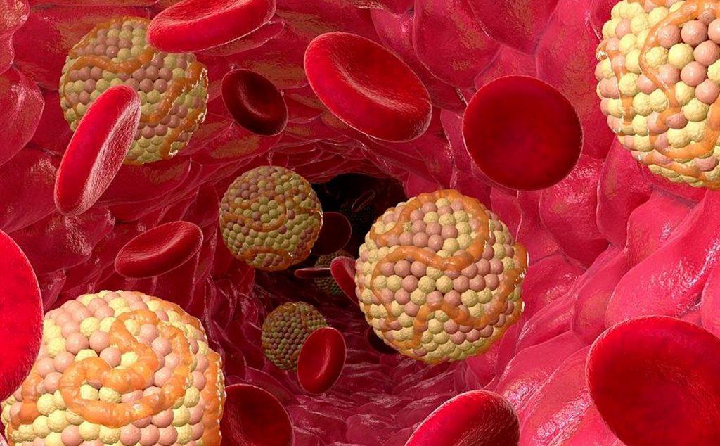 Статины - опасные лекарства. Так ли вреден холестерин для сосудов, как принято думать?