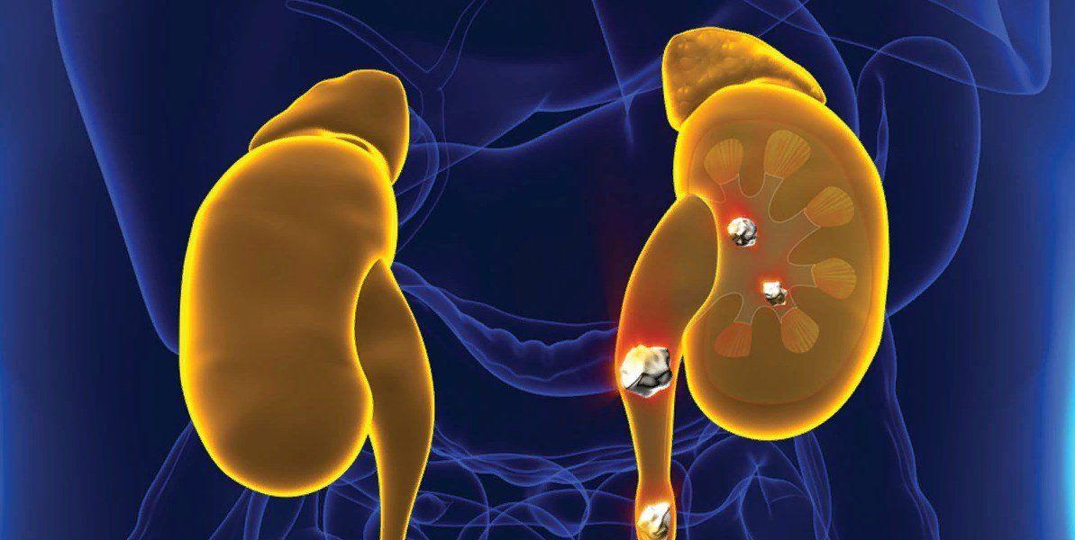 Лечение мочекаменной болезни в домашних условиях. Природные средства для нормализации обмена веществ